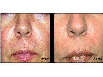 Laser dermatologique - 543646