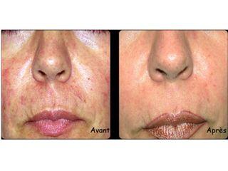 Avant après Laser dermatologique