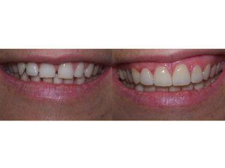 Avant après implants dentaires
