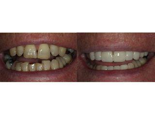 Avant après Esthétique dentaire