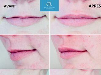 Augmentation des lèvres-611378
