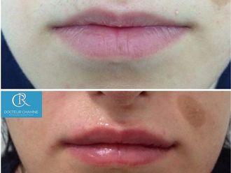 Augmentation des lèvres-611379