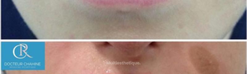 lèvres asymétriques