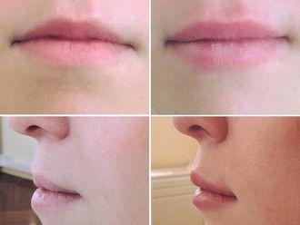Augmentation des lèvres-611380
