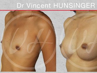 Augmentation mammaire-537936