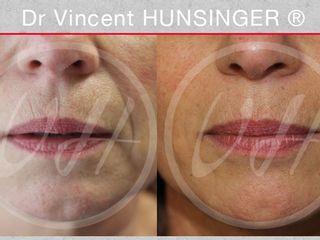 Avant après Injection d'acde hyaluronique dans les dillons nasogéniens et dans les lèvres