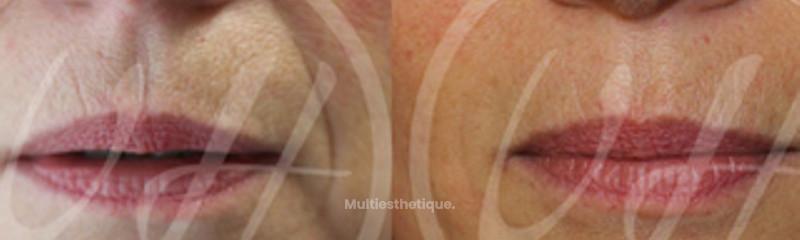 Injection d'acde hyaluronique dans les dillons nasogéniens et dans les lèvres