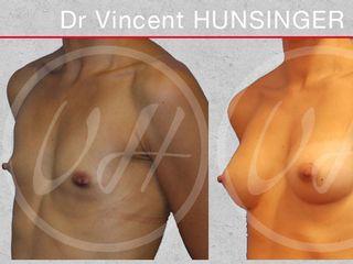 augmentation mammaire prothèses anatomiques 245cc