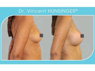 Avant après Augmentation mammaire