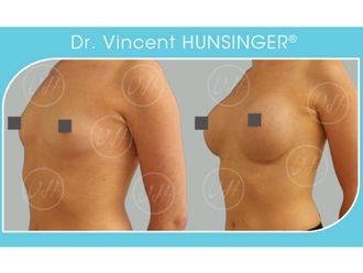 Augmentation mammaire - 632089