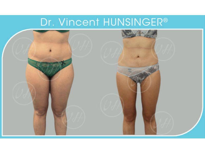 Dr Vincent Hunsinger