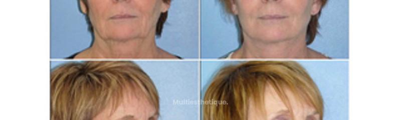 Lifting cervico-facial chez une femme de 60 ans