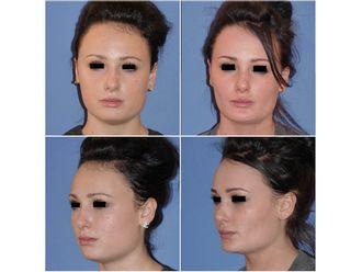 Chirurgie maxillo-faciale - 485925