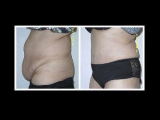 Abdominoplastie - 642709