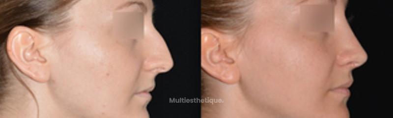 Profil avant - après à 1 mois