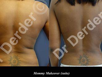 Abdominoplastie-689608