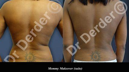 Avant après Abdominoplastie