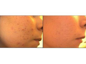 Traitement anti-acné - 542960