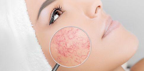 Lésions vasculaires du visage