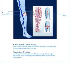 Varicosités des membres inférieurs