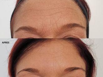 Botox-647002