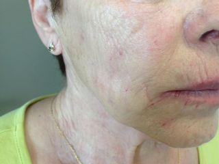 Nappage d'acide hyaluronique dans les joues