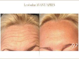 Avant après Toxine botulique - Botox