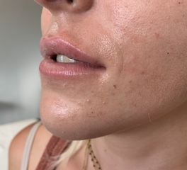 injection des lèvres après