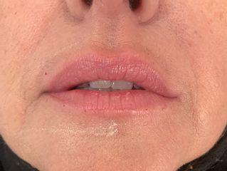 remodelage des lèvres après