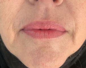 remodelage des lèvres avant