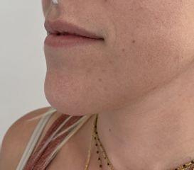 injection des lèvres avant