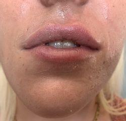 injection des lèvres