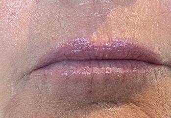 Injection des lèvres apresy