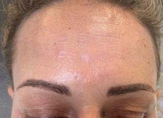 injection de Botox après