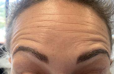 injection de Botox avant