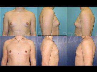 Avant après Gynecomastie