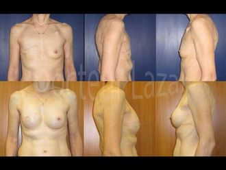 Reconstruction mammaire-587639