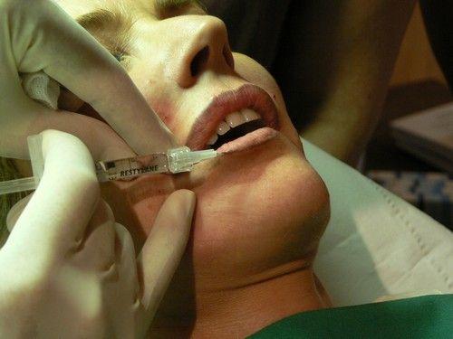 Dr Catherine Dropsy - Médecine Esthétique Toulon Var