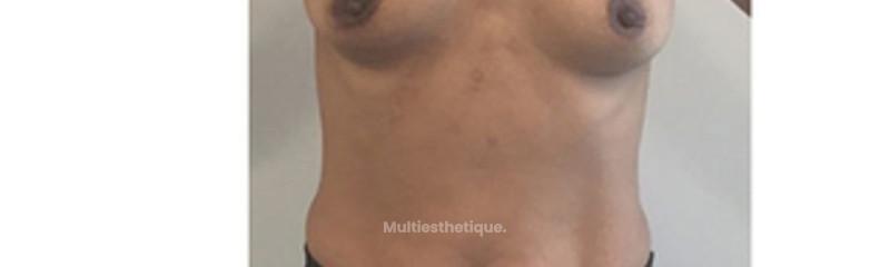 avant augmentation mammaire