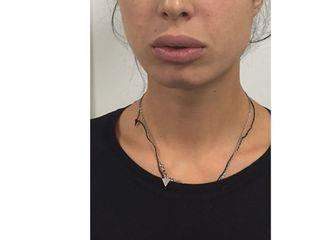 Résultat après augmentation des lèvres par acide hyaluronique