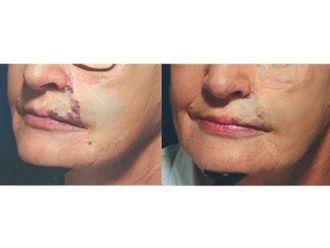Dermatologie-545082