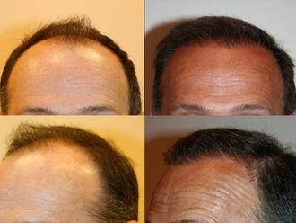 Greffe de cheveux-544866
