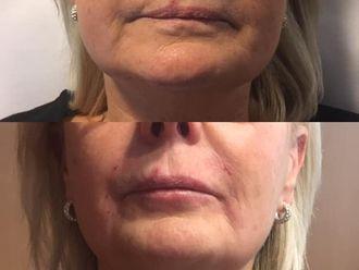 Augmentation des lèvres - 795814