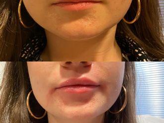 Augmentation des lèvres - 795816