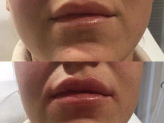 Augmentation des lèvres - 795818