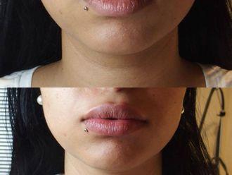 Augmentation des lèvres - 795822