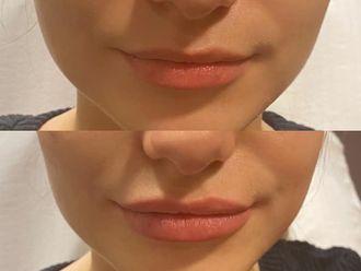 Augmentation des lèvres - 795829