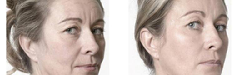 rajeunissement facial