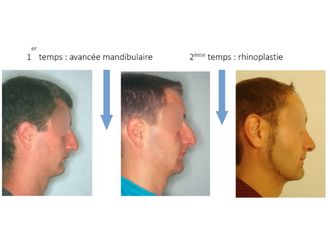 Chirurgie Esthétique-637185