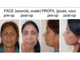 Chirurgie Esthétique-637581